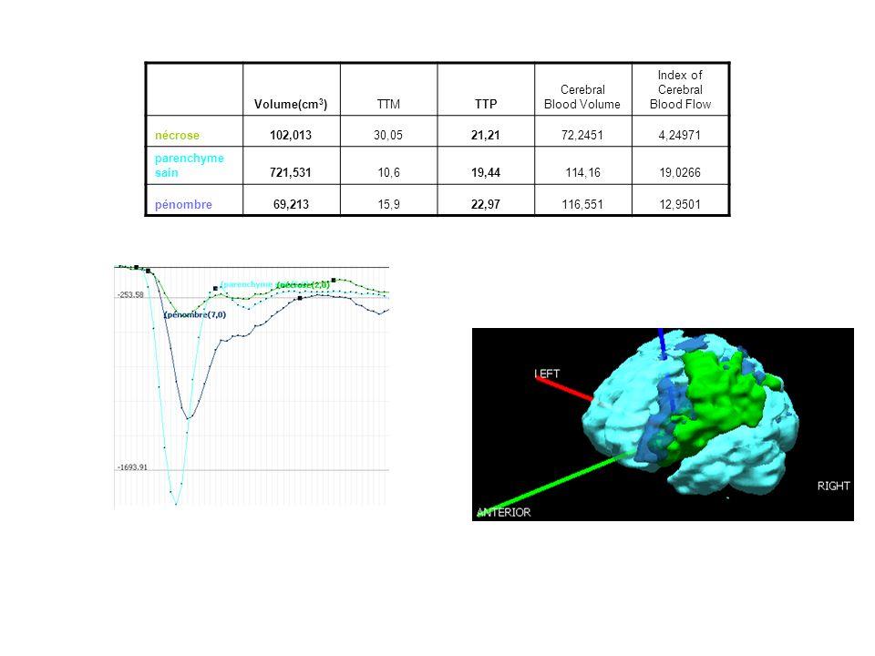 Volume(cm 3 )TTMTTP Cerebral Blood Volume Index of Cerebral Blood Flow nécrose102,01330,0521,2172,24514,24971 parenchyme sain721,53110,619,44114,1619,