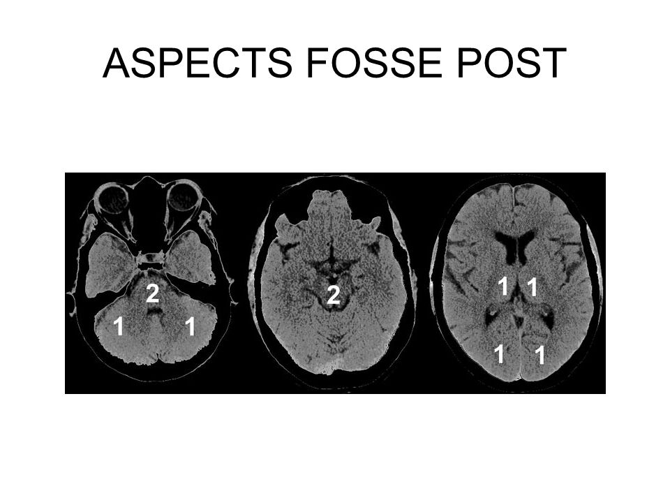 ASPECTS FOSSE POST