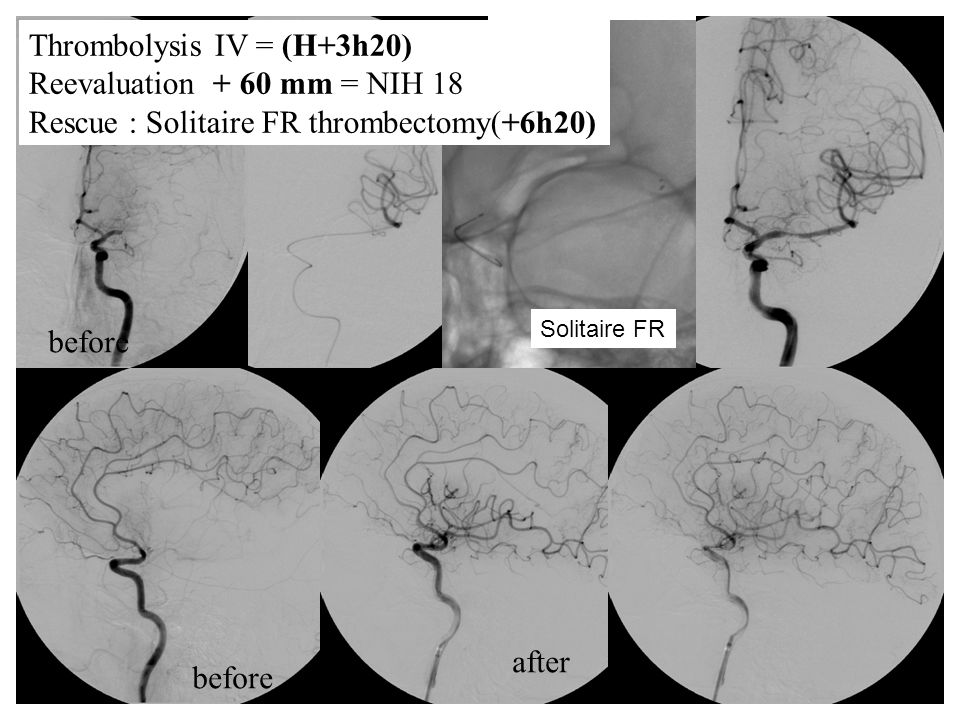 before after Solitaire FR Thrombolysis IV = (H+3h20) Reevaluation + 60 mm = NIH 18 Rescue : Solitaire FR thrombectomy(+6h20)