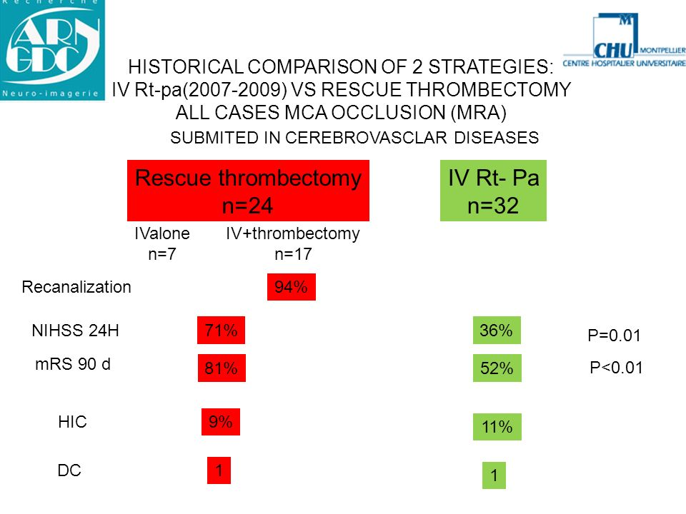 HISTORICAL COMPARISON OF 2 STRATEGIES: IV Rt-pa(2007-2009) VS RESCUE THROMBECTOMY ALL CASES MCA OCCLUSION (MRA) Rescue thrombectomy n=24 IV Rt- Pa n=3