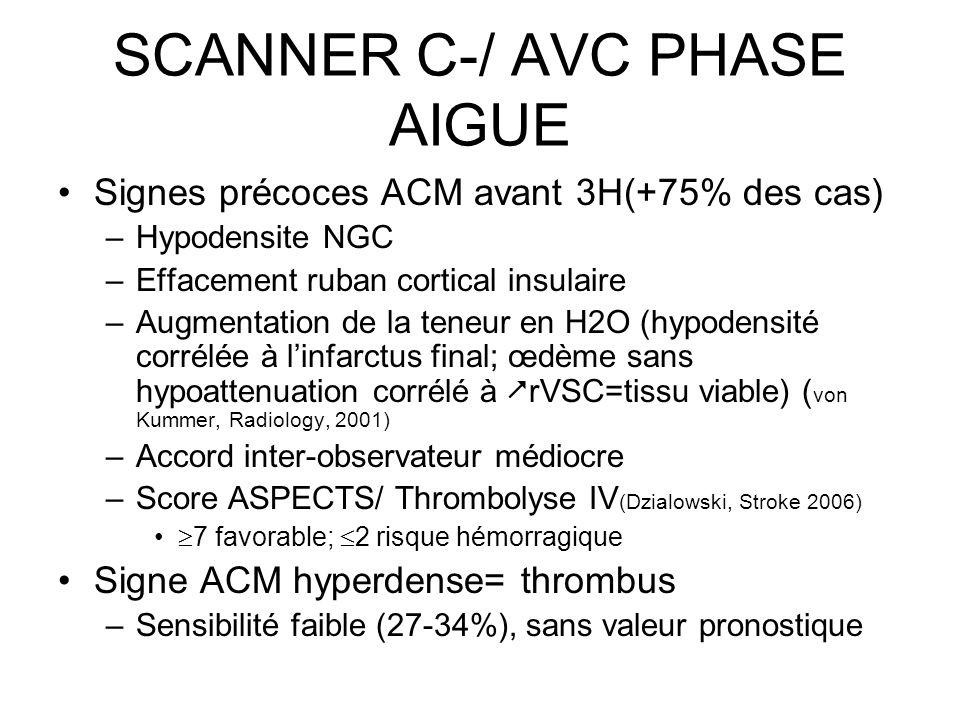 SCANNER C-/ AVC PHASE AIGUE Signes précoces ACM avant 3H(+75% des cas) –Hypodensite NGC –Effacement ruban cortical insulaire –Augmentation de la teneu