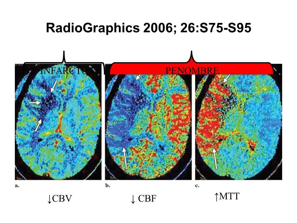 RadioGraphics 2006; 26:S75-S95 CBV MTT CBF PP PENOMBREINFARCTUS