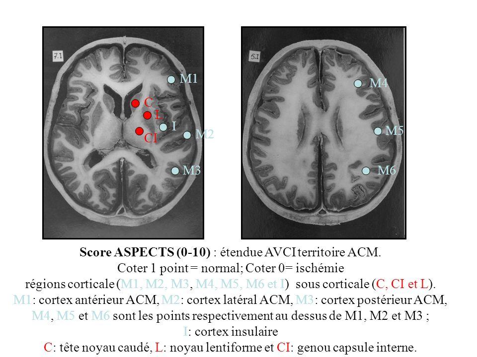 Score ASPECTS (0-10) : étendue AVCI territoire ACM. Coter 1 point = normal; Coter 0= ischémie régions corticale (M1, M2, M3, M4, M5, M6 et I) sous cor