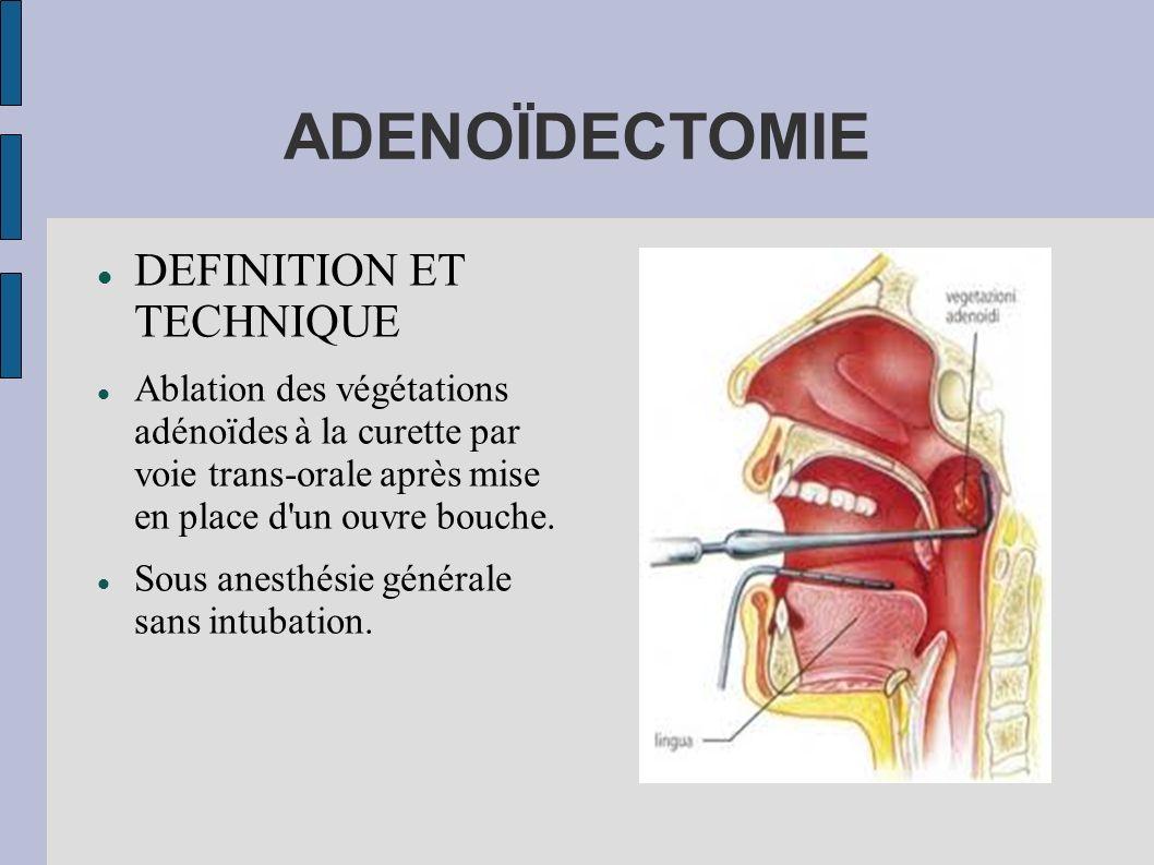 ADENOÏDECTOMIE DEFINITION ET TECHNIQUE Ablation des végétations adénoïdes à la curette par voie trans-orale après mise en place d'un ouvre bouche. Sou