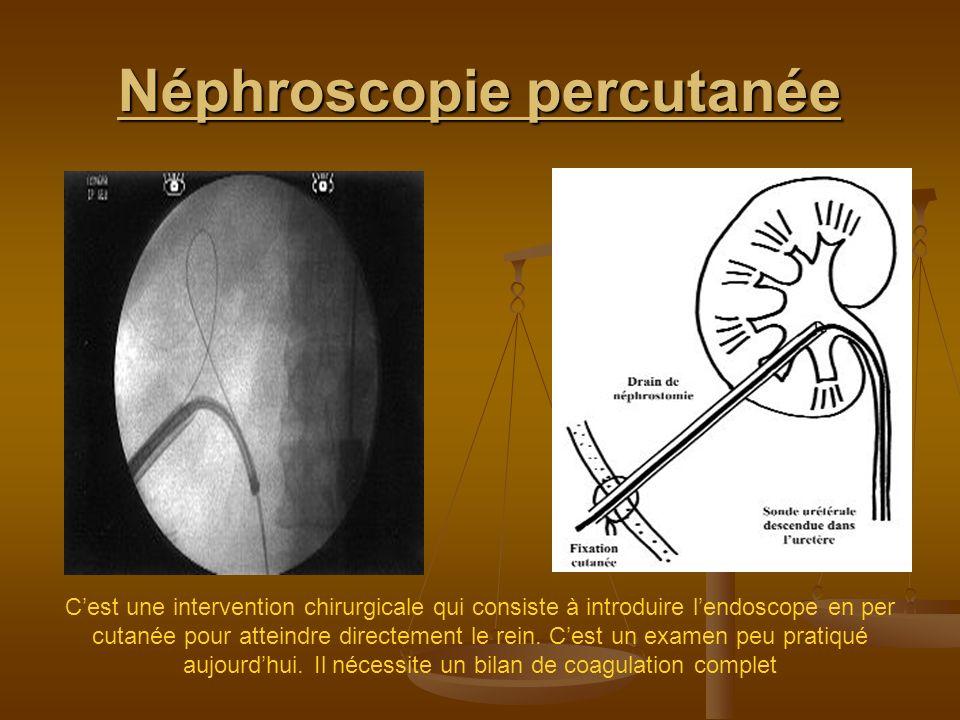Néphroscopie percutanée Cest une intervention chirurgicale qui consiste à introduire lendoscope en per cutanée pour atteindre directement le rein. Ces