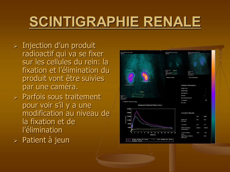 SCINTIGRAPHIE RENALE Injection dun produit radioactif qui va se fixer sur les cellules du rein: la fixation et lélimination du produit vont être suivi