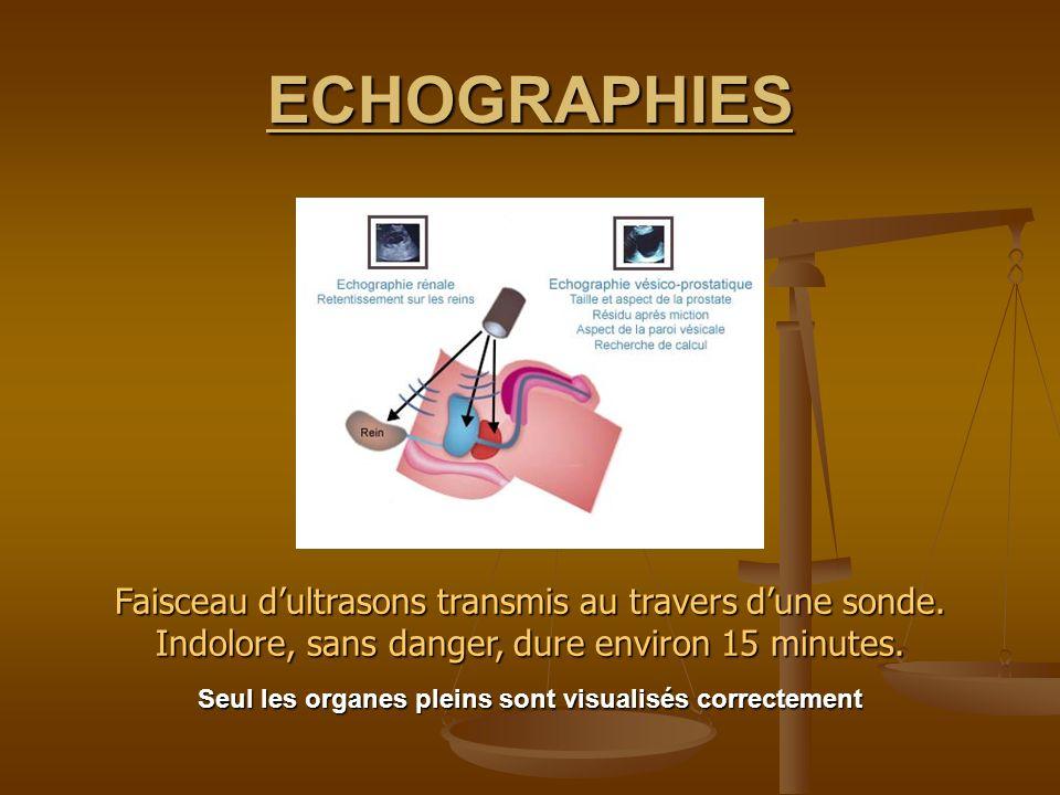 ECHOGRAPHIES Faisceau dultrasons transmis au travers dune sonde. Indolore, sans danger, dure environ 15 minutes. Seul les organes pleins sont visualis