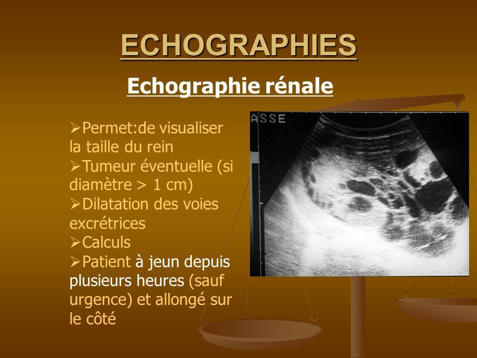 ECHOGRAPHIES Permet:de visualiser la taille du rein Tumeur éventuelle (si diamètre > 1 cm) Dilatation des voies excrétrices Calculs Patient à jeun dep