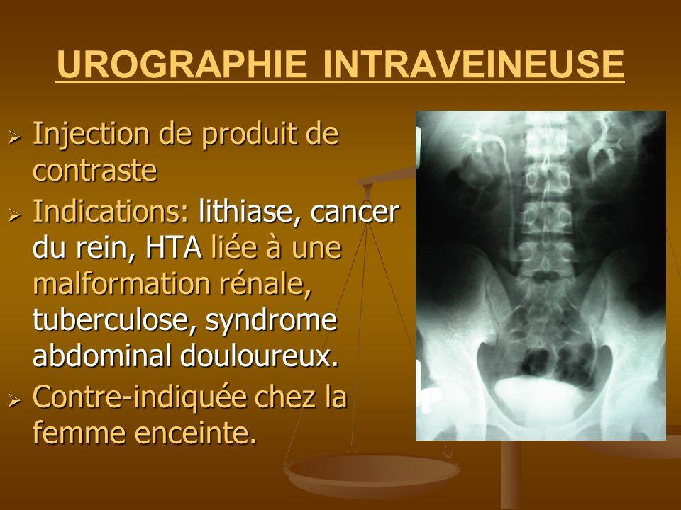 UROGRAPHIE INTRAVEINEUSE Injection de produit de contraste Injection de produit de contraste Indications: lithiase, cancer du rein, HTA liée à une mal