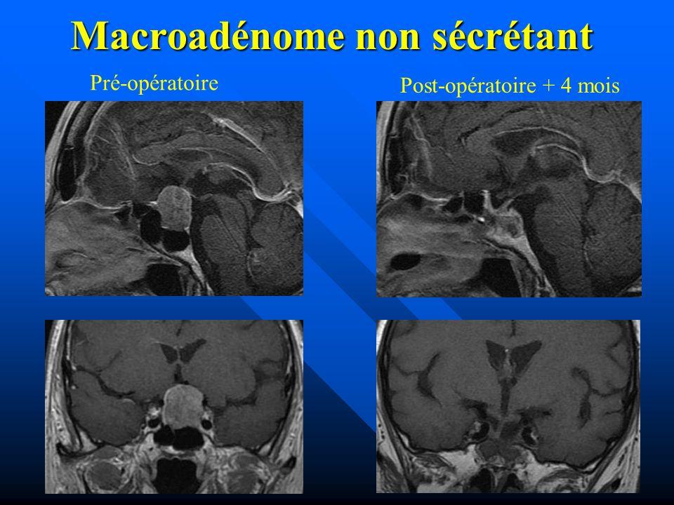 Macroadénome non sécrétant Pré-opératoire Post-opératoire + 4 mois