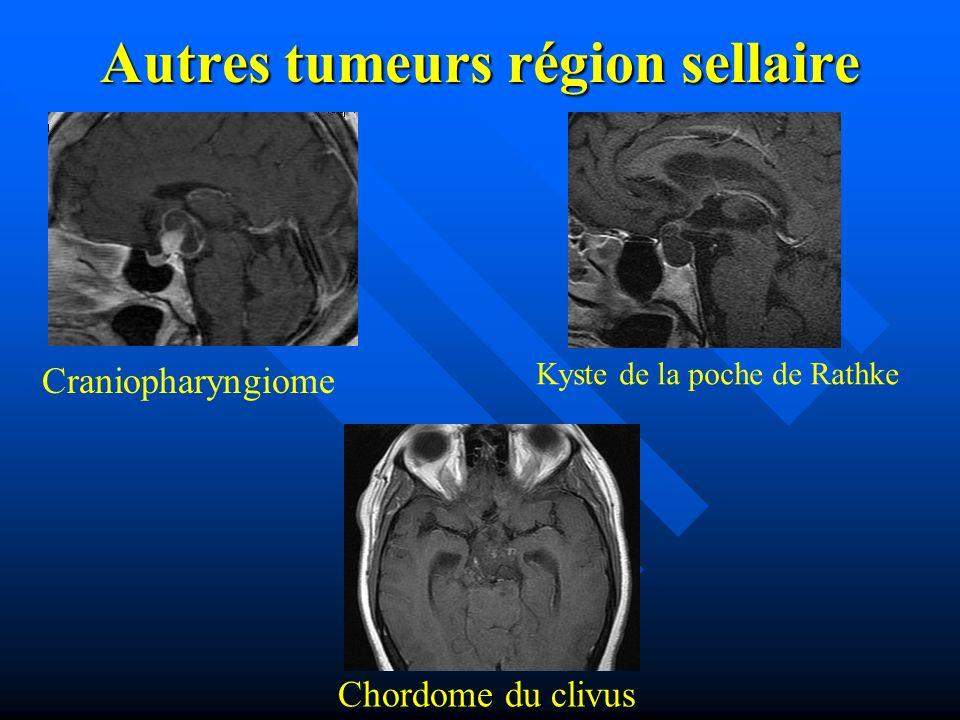Autres tumeurs région sellaire Craniopharyngiome Chordome du clivus Kyste de la poche de Rathke