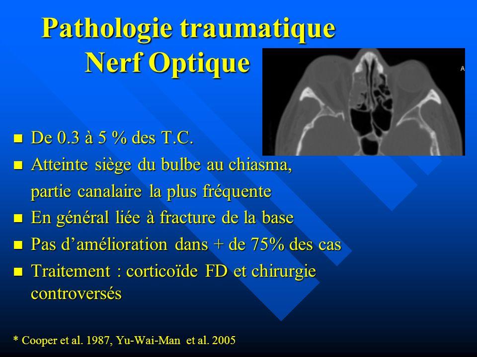 Pathologie traumatique Nerf Optique De 0.3 à 5 % des T.C. De 0.3 à 5 % des T.C. Atteinte siège du bulbe au chiasma, Atteinte siège du bulbe au chiasma