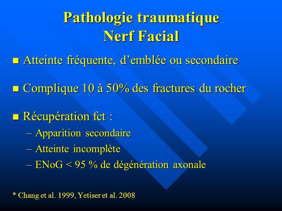 Pathologie traumatique Nerf Facial Atteinte fréquente, demblée ou secondaire Atteinte fréquente, demblée ou secondaire Complique 10 à 50% des fracture
