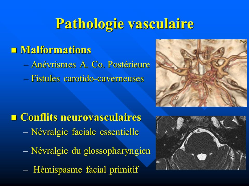 Pathologie vasculaire Malformations Malformations –Anévrismes A. Co. Postérieure –Fistules carotido-caverneuses Conflits neurovasculaires Conflits neu