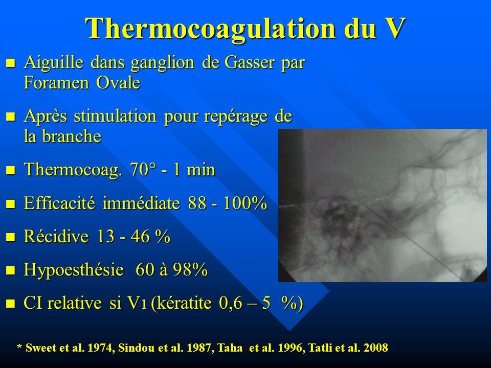 Thermocoagulation du V Aiguille dans ganglion de Gasser par Foramen Ovale Aiguille dans ganglion de Gasser par Foramen Ovale Après stimulation pour re