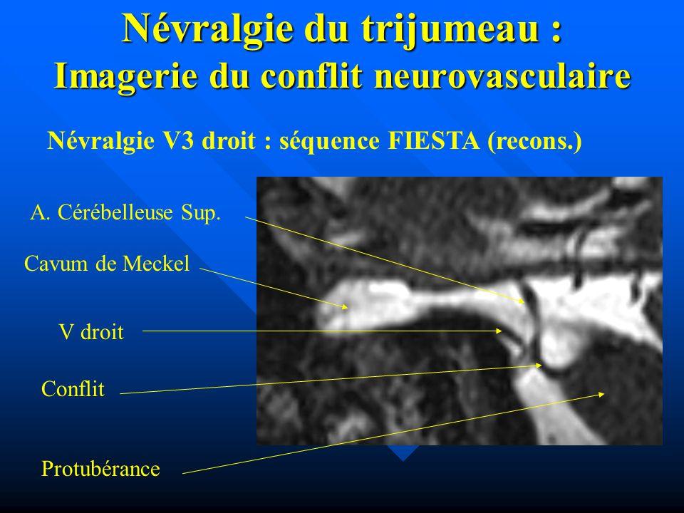 Névralgie du trijumeau : Imagerie du conflit neurovasculaire V droit A. Cérébelleuse Sup. Cavum de Meckel Conflit Protubérance Névralgie V3 droit : sé