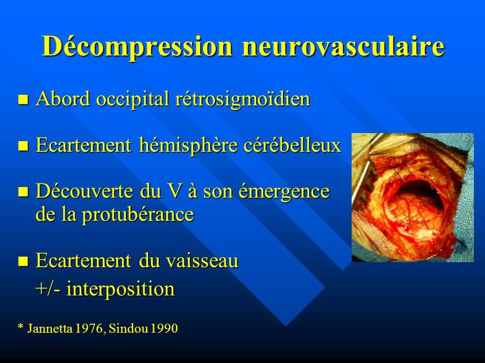 Décompression neurovasculaire Abord occipital rétrosigmoïdien Abord occipital rétrosigmoïdien Ecartement hémisphère cérébelleux Ecartement hémisphère
