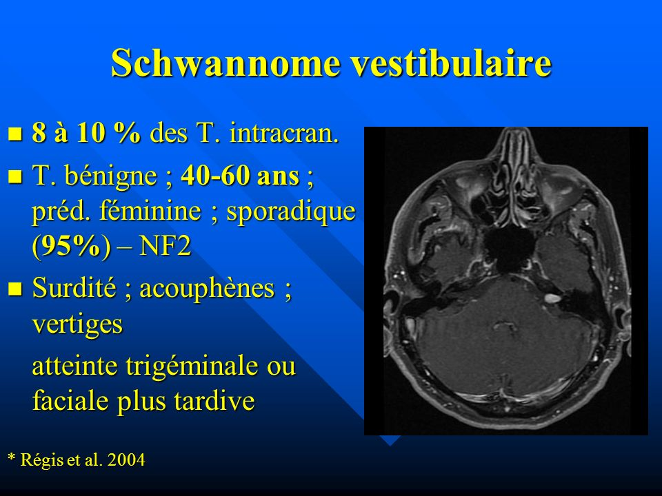 Schwannome vestibulaire 8 à 10 % des T. intracran. 8 à 10 % des T. intracran. T. bénigne ; 40-60 ans ; préd. féminine ; sporadique (95%) – NF2 T. béni