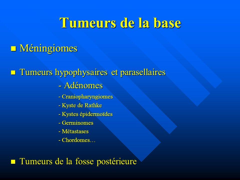 Tumeurs de la base Méningiomes Méningiomes Tumeurs hypophysaires et parasellaires Tumeurs hypophysaires et parasellaires - Adénomes - Adénomes - Crani