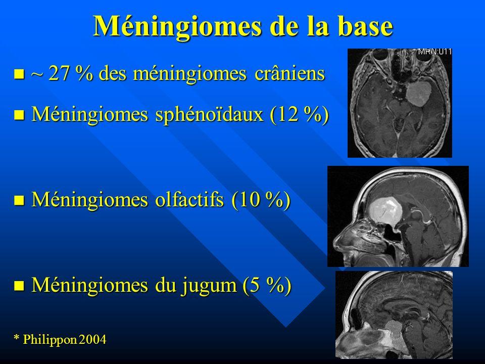 Méningiomes de la base ~ 27 % des méningiomes crâniens ~ 27 % des méningiomes crâniens Méningiomes sphénoïdaux (12 %) Méningiomes sphénoïdaux (12 %) M
