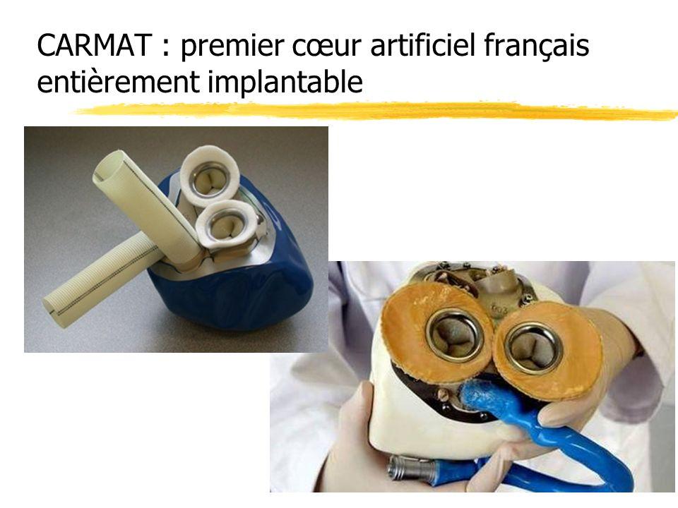CARMAT : premier cœur artificiel français entièrement implantable