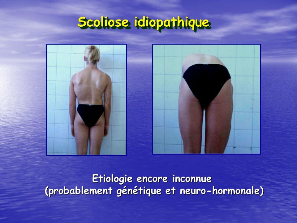 Scoliose idiopathique Etiologie encore inconnue (probablement génétique et neuro-hormonale)