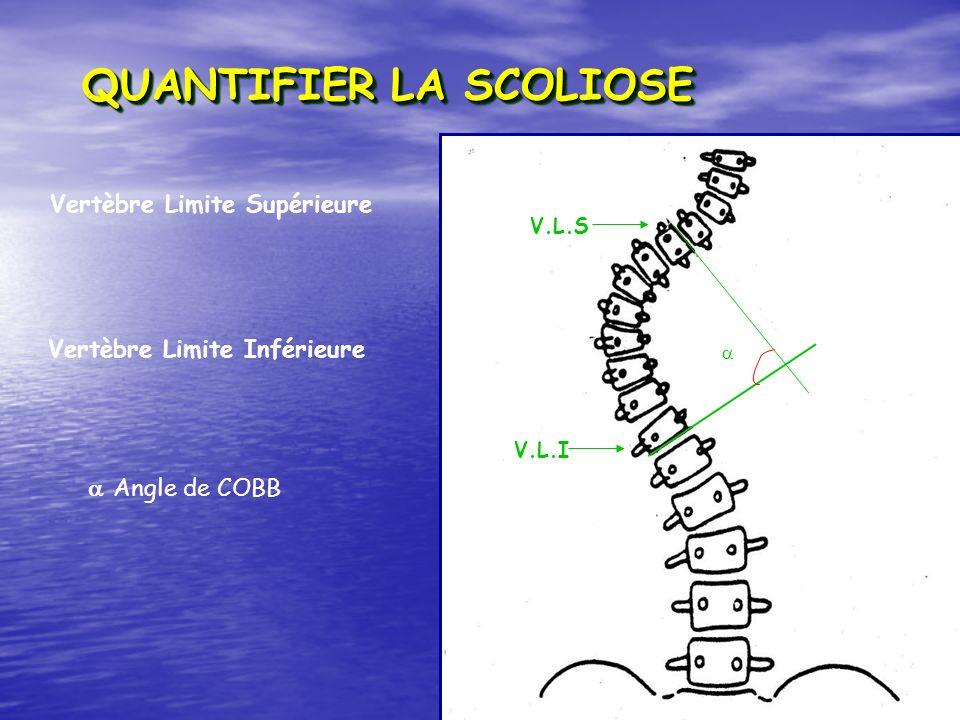 QUANTIFIER LA SCOLIOSE V.L.I V.L.S Vertèbre Limite Supérieure Vertèbre Limite Inférieure Angle de COBB