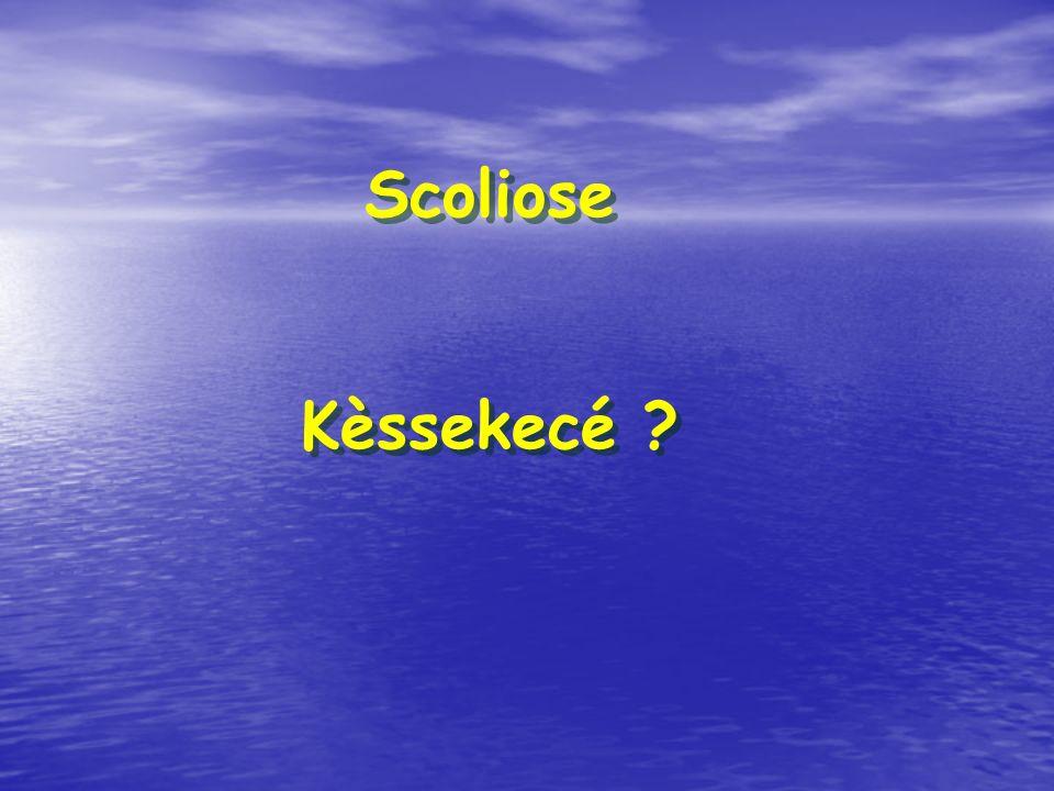 Scoliose Kèssekecé ? Scoliose Kèssekecé ?