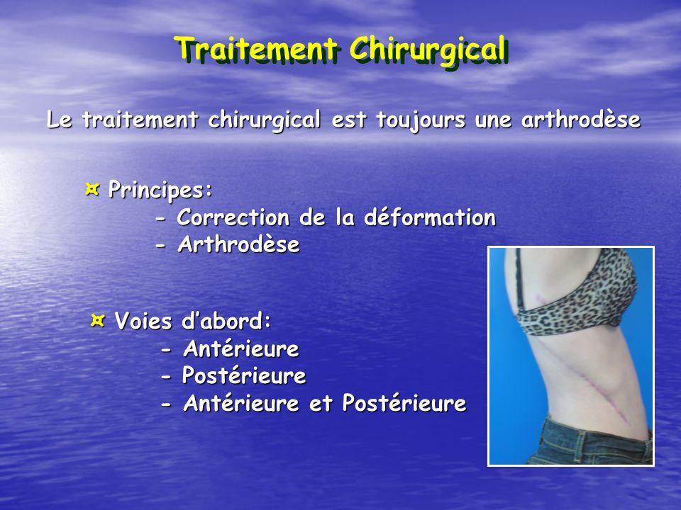 Le traitement chirurgical est toujours une arthrodèse Traitement Chirurgical ¤ Principes: - Correction de la déformation - Arthrodèse ¤ Voies dabord: