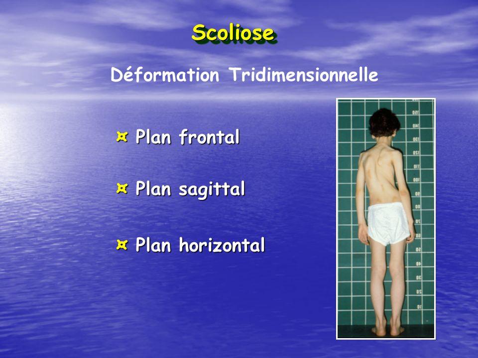 Déformation Tridimensionnelle ¤ Plan frontal ¤ Plan sagittal ¤ Plan horizontal ScolioseScoliose