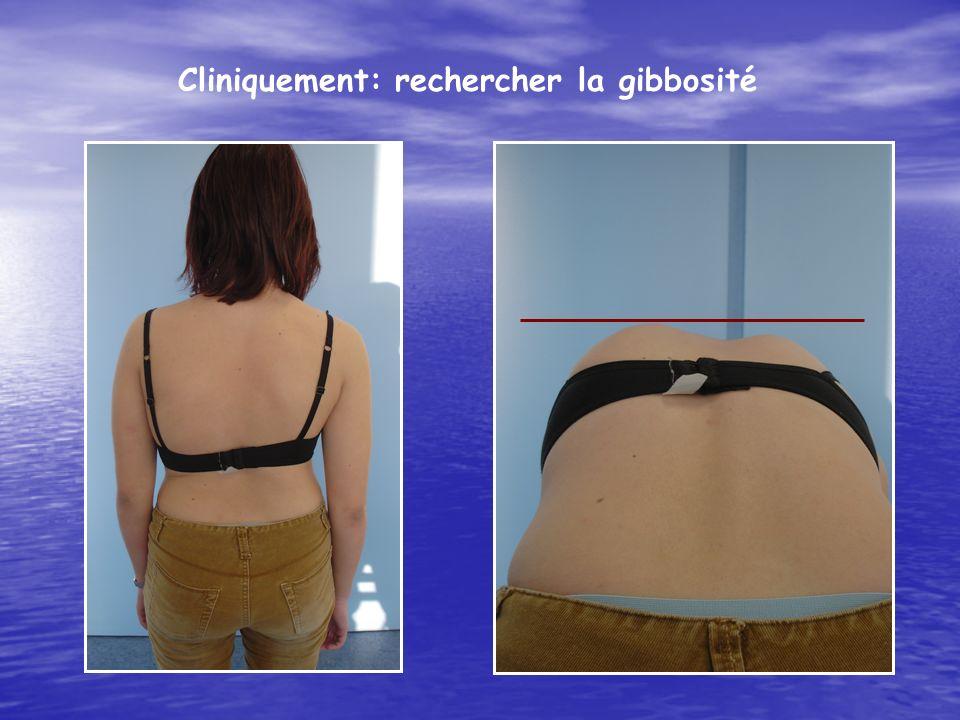 Cliniquement: rechercher la gibbosité