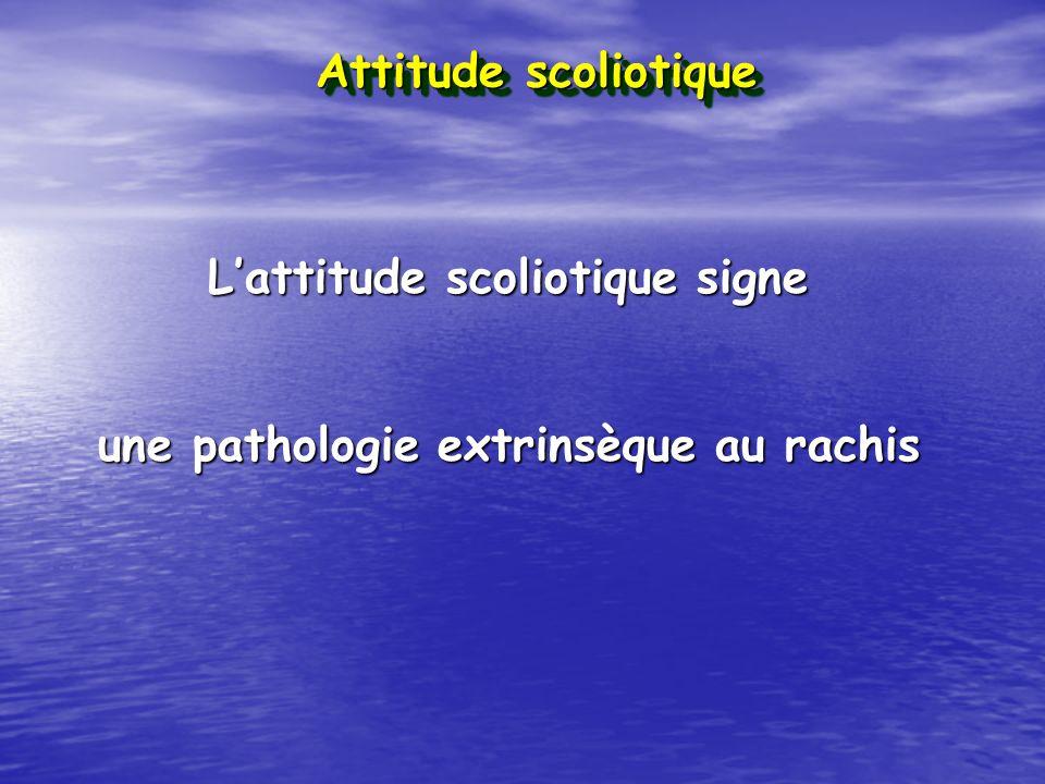 Lattitude scoliotique signe une pathologie extrinsèque au rachis Attitude scoliotique