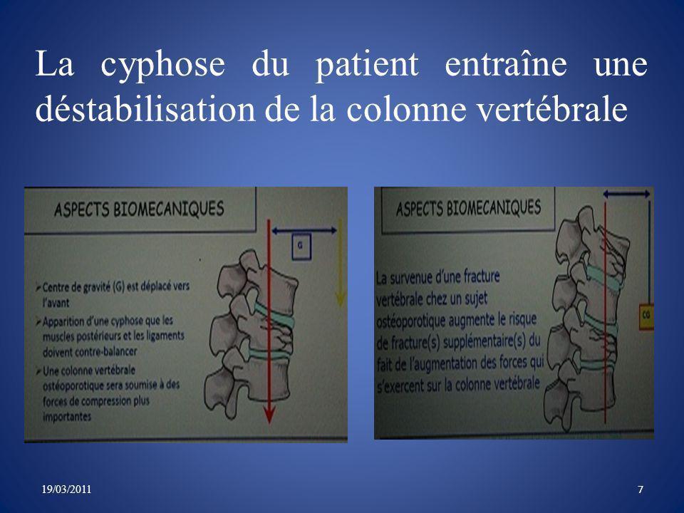 Réduction des prises dantalgiques La cyphoplastie diminue le pourcentage de patient ayant recours à des antalgiques de plus de 70% à moins de 20% à 1 semaine.