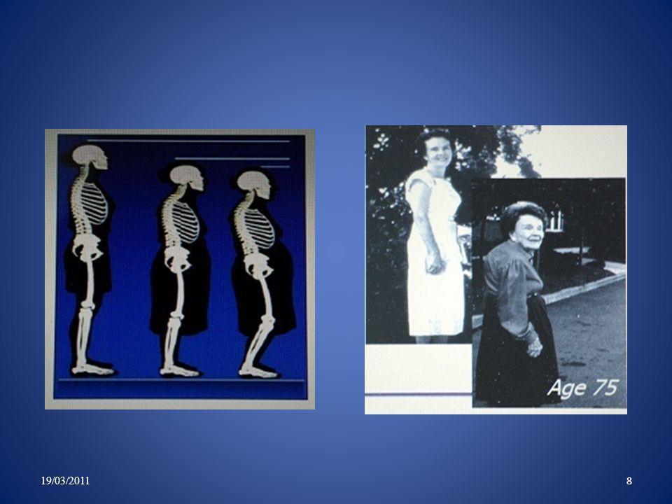 Les options thérapeutiques devant une fracture vertébrale par compression 19/03/2011 9