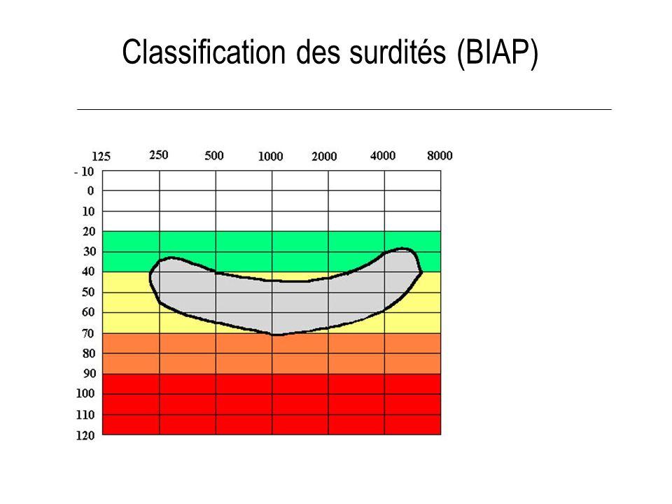 Classification des surdités (BIAP) Audition normale Surdité légère Surdité moyenne Surdité sévère Surdité profonde