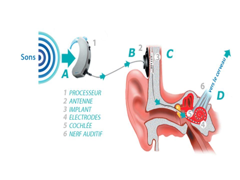 Indications Surdité de perception sévère à profonde bilatérale Peu ou pas damélioration avec les prothèses auditives Critères audiologiques: discrimination de la parole < 50 % à 60 dB en champ libre sans LL Peu de limite dâge !!