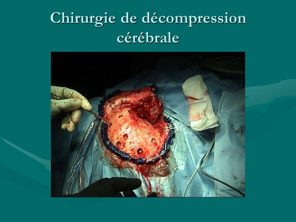 Chirurgie de décompression cérébrale