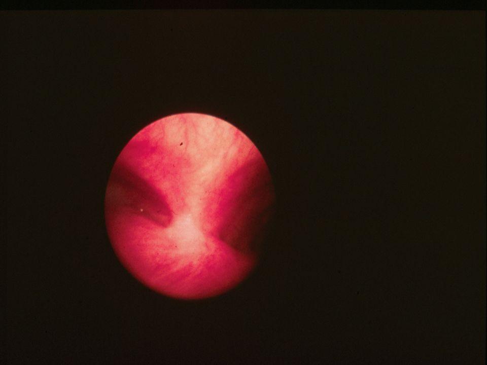 SIGNES DUNE ATELECTASIE -Opacité systématisée -pincement costal -attraction du médiastin -ascension de la coupole -attraction de la scissure SIGNES DUNE PNEUMONIE -Opacité systématisée -Pas de déplacement anatomique -Bronchogramme aérien
