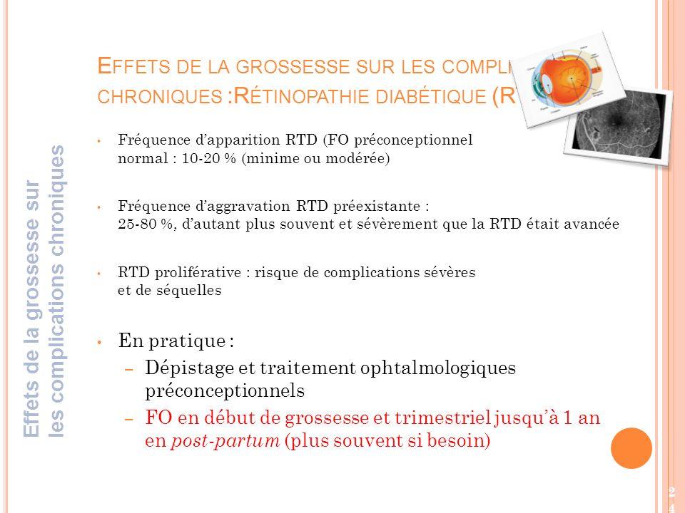 Fréquence dapparition RTD (FO préconceptionnel normal : 10-20 % (minime ou modérée) Fréquence daggravation RTD préexistante : 25-80 %, dautant plus souvent et sévèrement que la RTD était avancée RTD proliférative : risque de complications sévères et de séquelles En pratique : – Dépistage et traitement ophtalmologiques préconceptionnels – FO en début de grossesse et trimestriel jusquà 1 an en post-partum (plus souvent si besoin) E FFETS DE LA GROSSESSE SUR LES COMPLICATIONS CHRONIQUES :R ÉTINOPATHIE DIABÉTIQUE (RTD) ( Effets de la grossesse sur les complications chroniques 24
