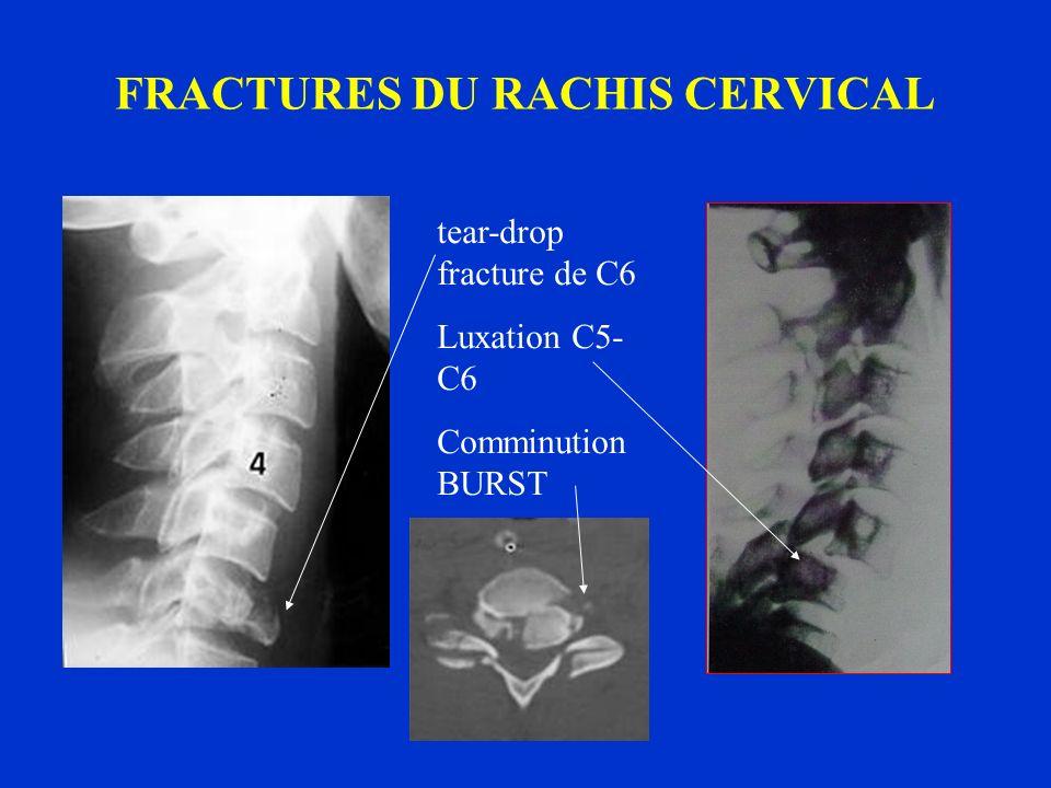 FRACTURES DU RACHIS CERVICAL tear-drop fracture de C6 Luxation C5- C6 Comminution BURST