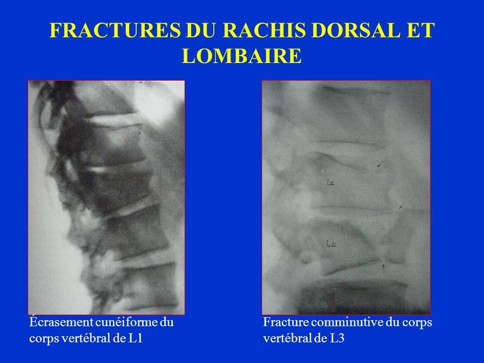FRACTURES DU RACHIS DORSAL ET LOMBAIRE Écrasement cunéiforme du corps vertébral de L1 Fracture comminutive du corps vertébral de L3