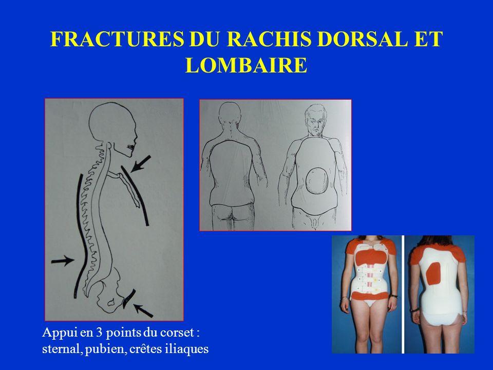 FRACTURES DU RACHIS DORSAL ET LOMBAIRE Appui en 3 points du corset : sternal, pubien, crêtes iliaques