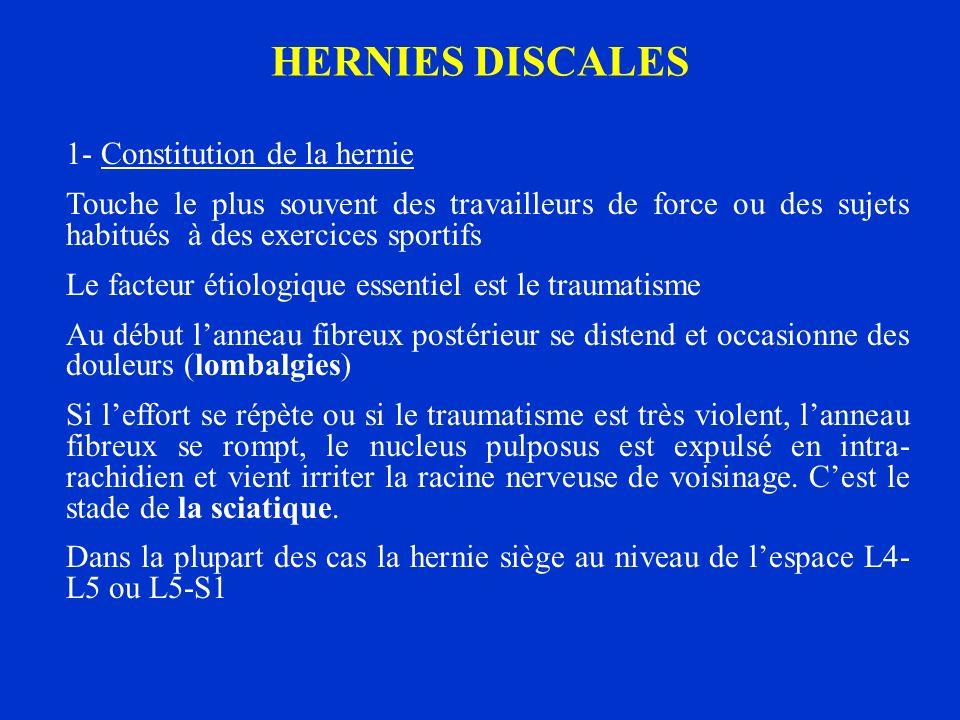HERNIES DISCALES 1- Constitution de la hernie Touche le plus souvent des travailleurs de force ou des sujets habitués à des exercices sportifs Le fact