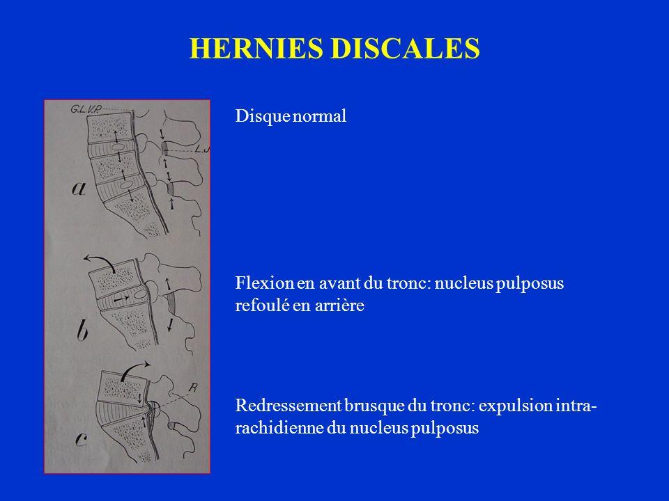 HERNIES DISCALES Disque normal Flexion en avant du tronc: nucleus pulposus refoulé en arrière Redressement brusque du tronc: expulsion intra- rachidie