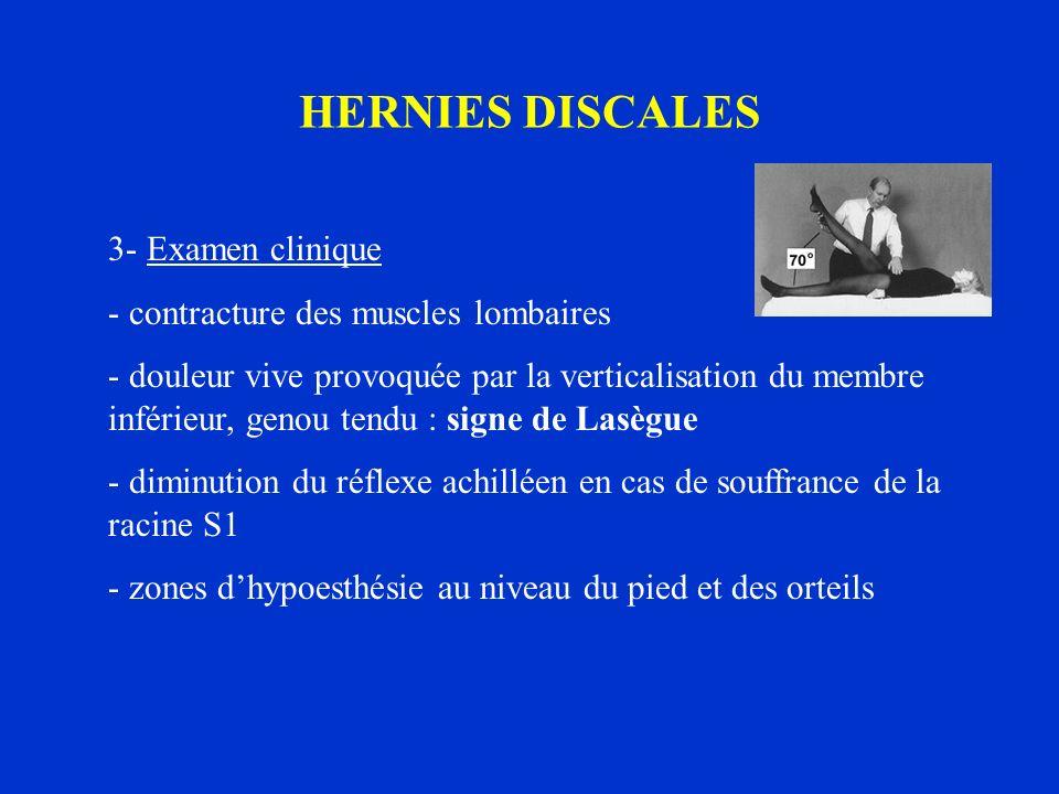 HERNIES DISCALES 3- Examen clinique - contracture des muscles lombaires - douleur vive provoquée par la verticalisation du membre inférieur, genou ten
