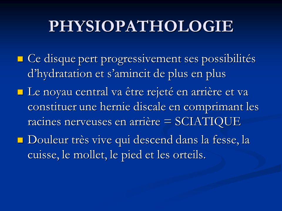 PHYSIOPATHOLOGIE Ce disque pert progressivement ses possibilités dhydratation et samincit de plus en plus Ce disque pert progressivement ses possibili
