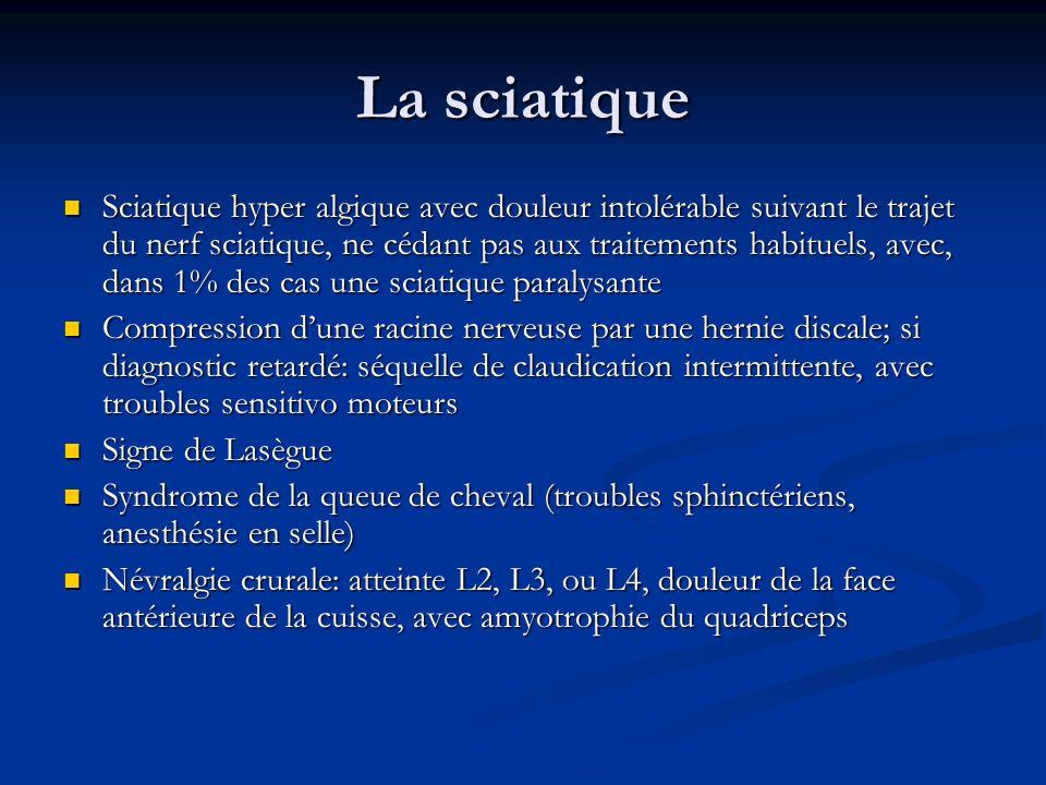 La sciatique Sciatique hyper algique avec douleur intolérable suivant le trajet du nerf sciatique, ne cédant pas aux traitements habituels, avec, dans
