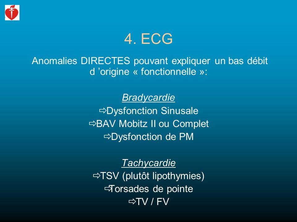 4. ECG Anomalies DIRECTES pouvant expliquer un bas débit d origine « fonctionnelle »: Bradycardie Dysfonction Sinusale BAV Mobitz II ou Complet Dysfon