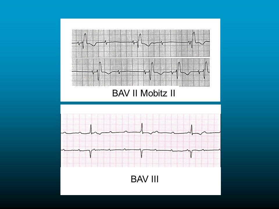 BAV II Mobitz II BAV III