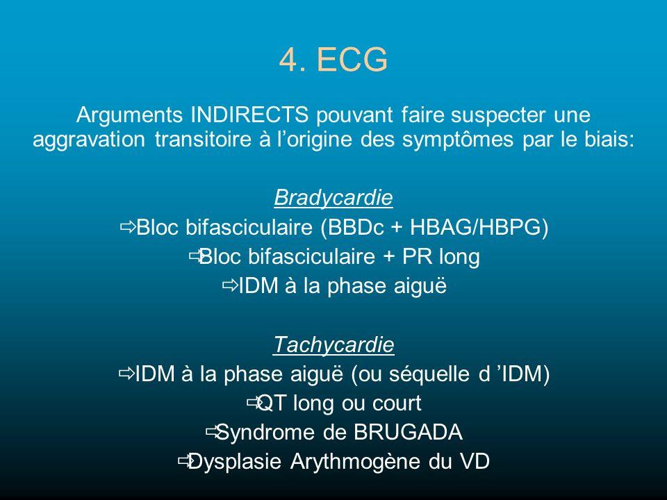 4. ECG Arguments INDIRECTS pouvant faire suspecter une aggravation transitoire à lorigine des symptômes par le biais: Bradycardie Bloc bifasciculaire